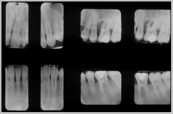 Parodontite giovanile dx