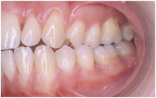 Parodontite giovanile sx