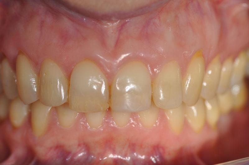 ortodonzia adulti 3