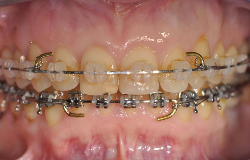 ortodonzia adulti 2
